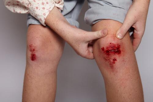 Child showing her grazed knee